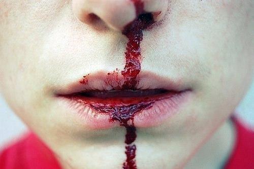 WExplain.ru - Почему иногда из носа течет кровь?