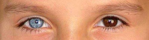 WExplain.ru - Почему у некоторых людей разноцветные глаза?
