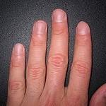 Зачем человеку нужны ногти?