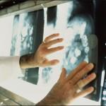 Почему человека может одолеть рак?