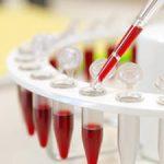 Что такое биохимическое исследование крови?